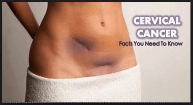 Signs of Cervical Cancer