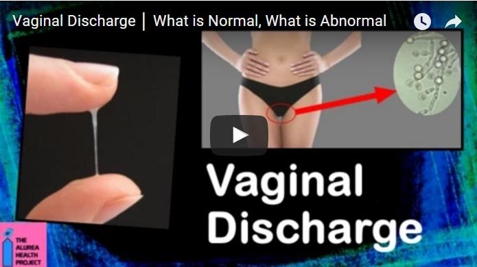 vaginal health discharge problem