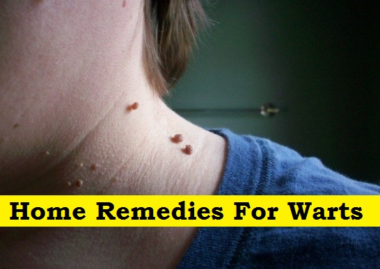 Common Warts Home Remedies For Wart...