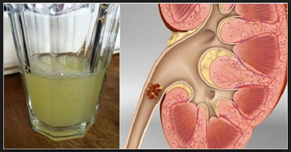 Drinking-Half-Cup-Of-Lemon-Juice-Can-Make-Your-Kidney-Healthier