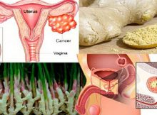 Ginger-Can-Fight-Prostate,-Ovarian-And-Colon-Cancer_1