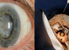 Scientists-Have-Created-A-New-Eye-Drop-That-Can-Melt-Cataracts